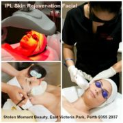 IPL Skin rejuvenation facial Perth