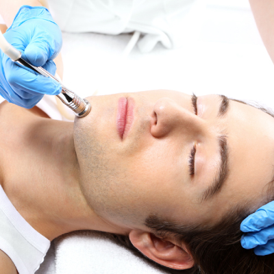 Microdermabrasion-Facial-for-Men-Perth